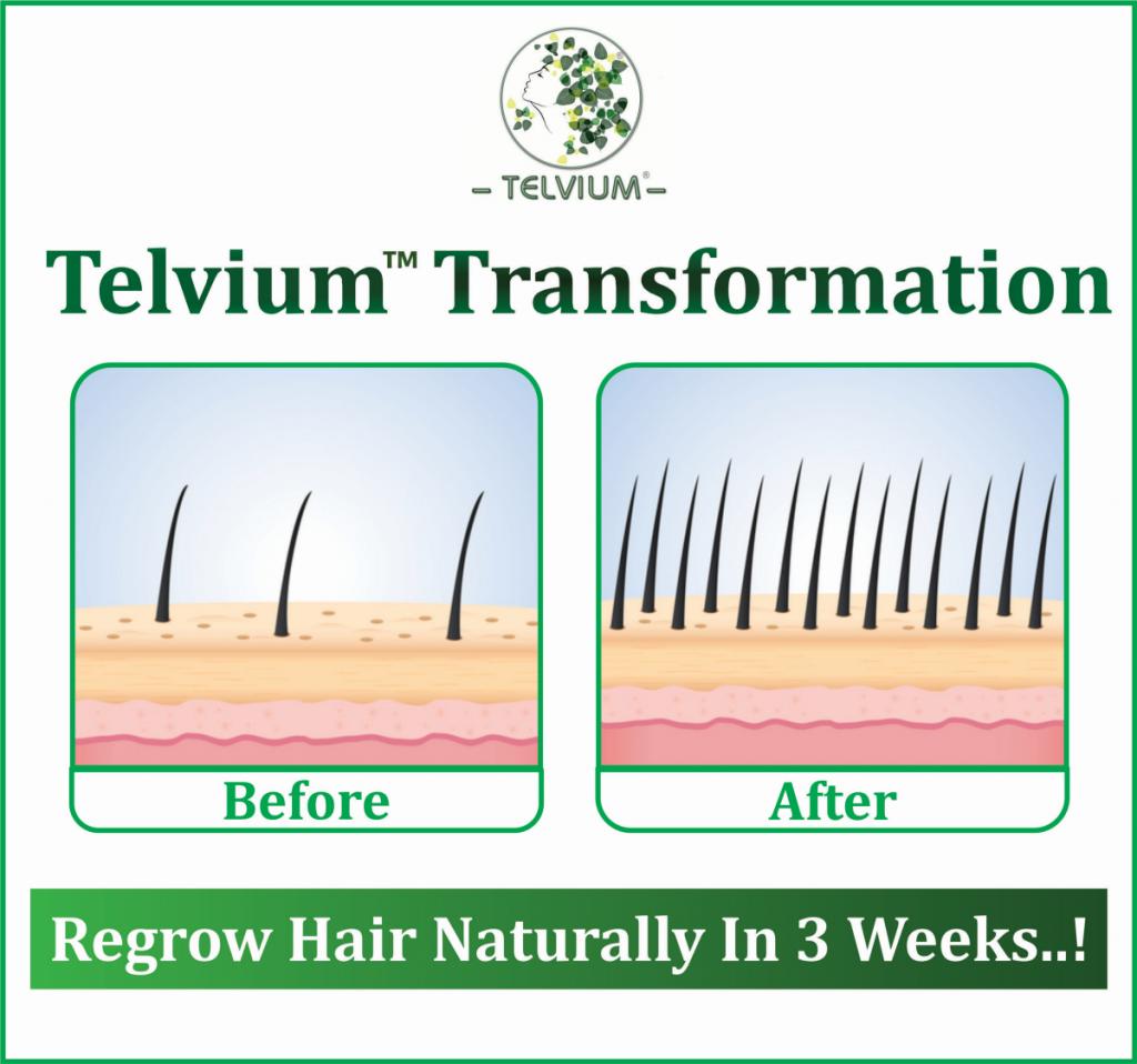 Natural Hair Treatments For Hair Growth
